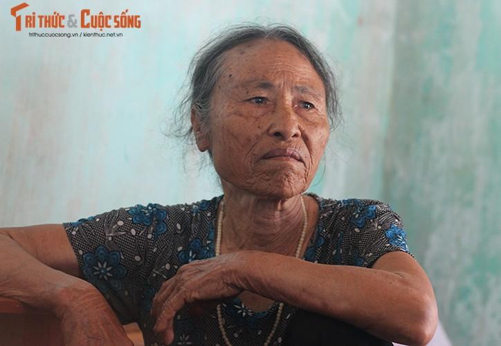 Anh: Canh khon kho cua nguoi bi danh oan vi nghi bat coc tre em o HN-Hinh-13